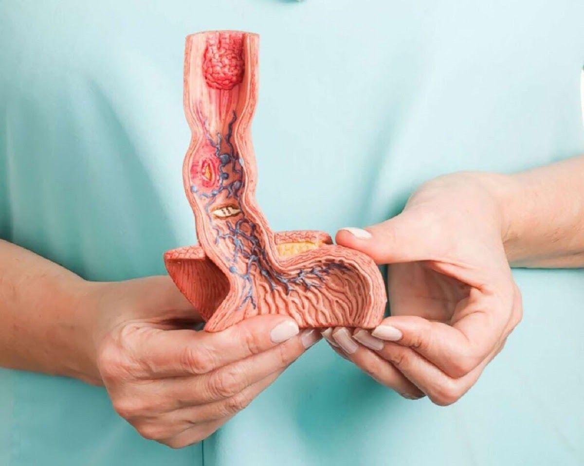 Ung thư thực quản nằm trong nhóm 10 bệnh ung thư thường gặp nhất ở Việt Nam