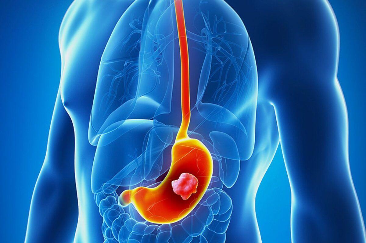 Chướng bụng, đầy hơi là dấu hiệu của bệnh ung thư dạ dày