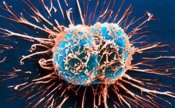 Bị ung thư di căn sống được bao lâu?