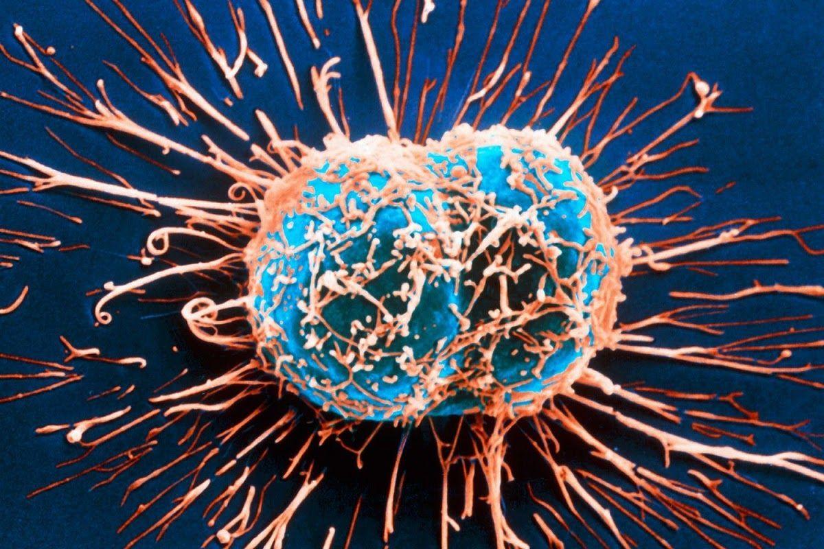 Ung thư di căn là giai đoạn phát triển cuối cùng của bệnh