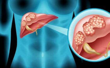 Dấu hiệu ung thư gan di căn phổi