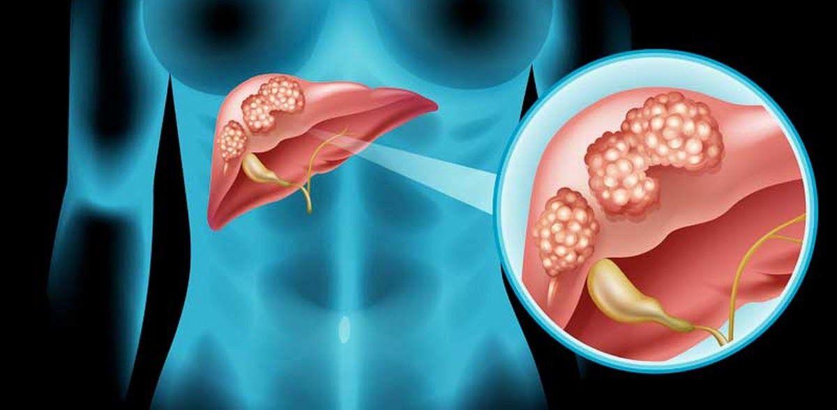 Bệnh nhân có thể gặp phải những cơn đau thắt vùng ngực là dấu hiệu ung thư gan di căn