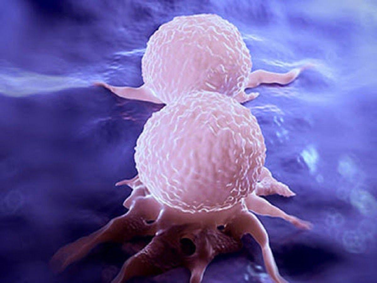 Ung thư là gì? Ung thư là bệnh lý ác tính của tế bào
