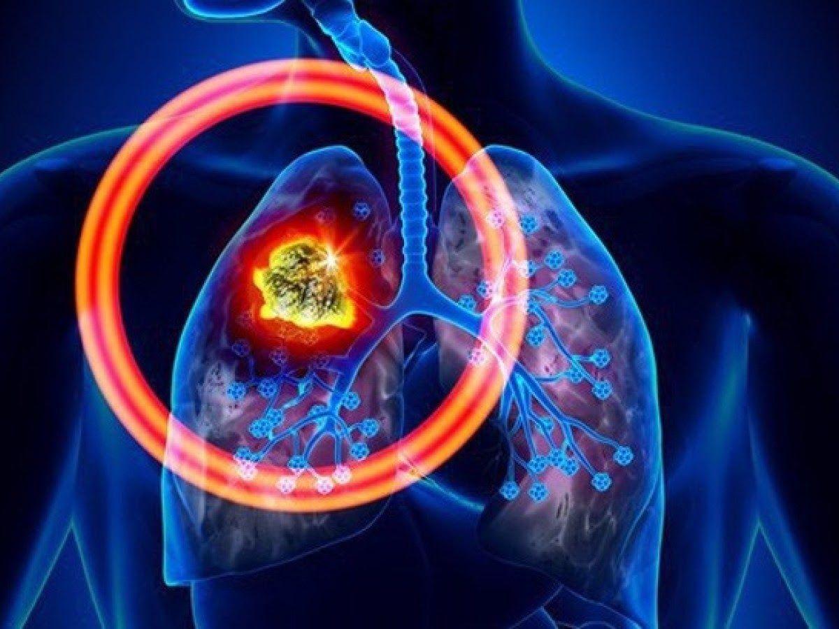 Ung thư phổi là căn bệnh trong đó xuất hiện một khối u ác tính được mô tả qua sự tăng sinh tế bào không thể kiểm soát trong các mô phổi