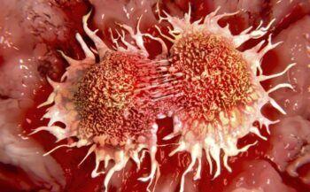 Giải đáp thắc mắc ung thư máu sống được bao lâu?