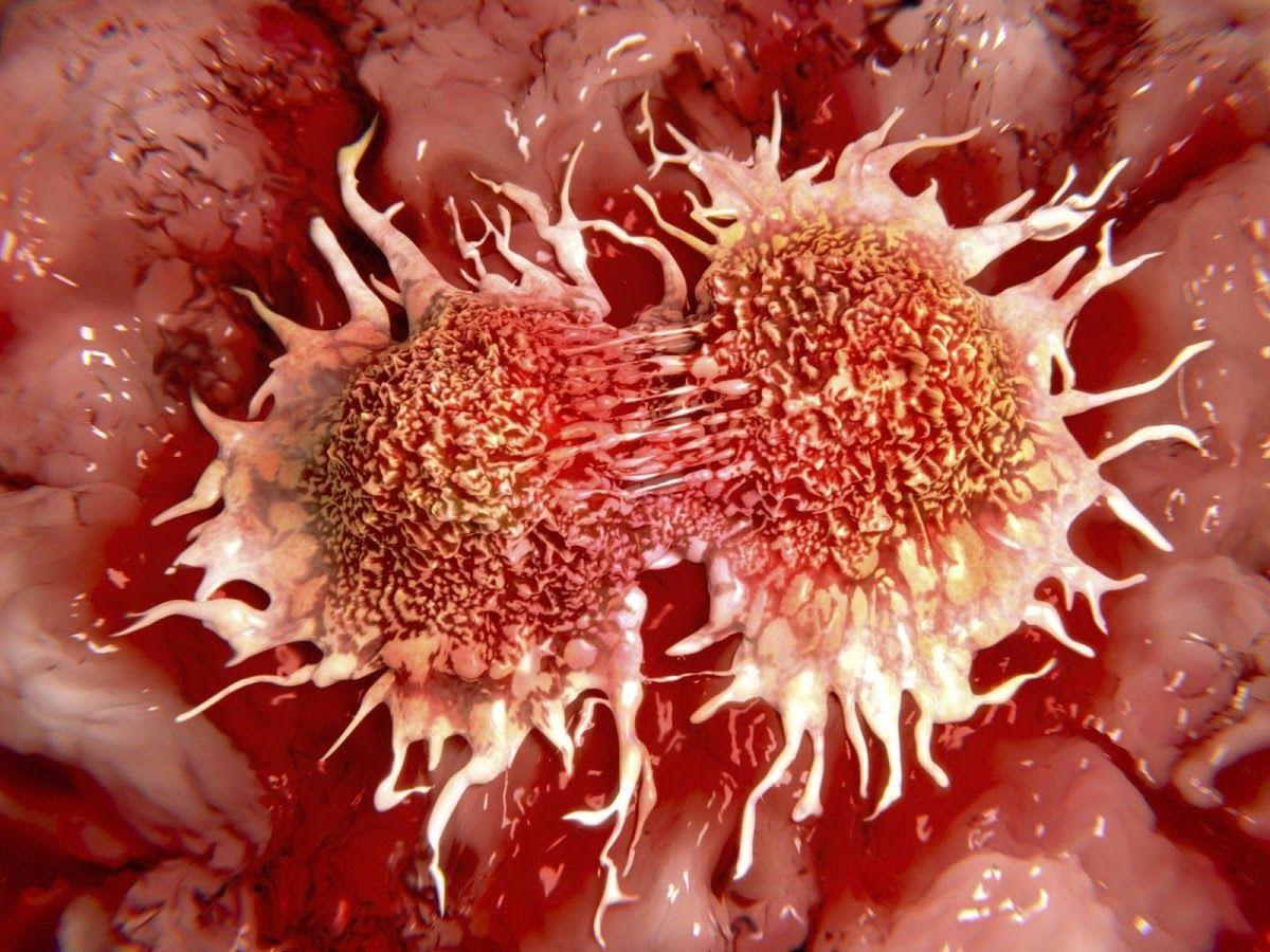 Ung thư máu sống được bao lâu còn dựa vào những yếu tố