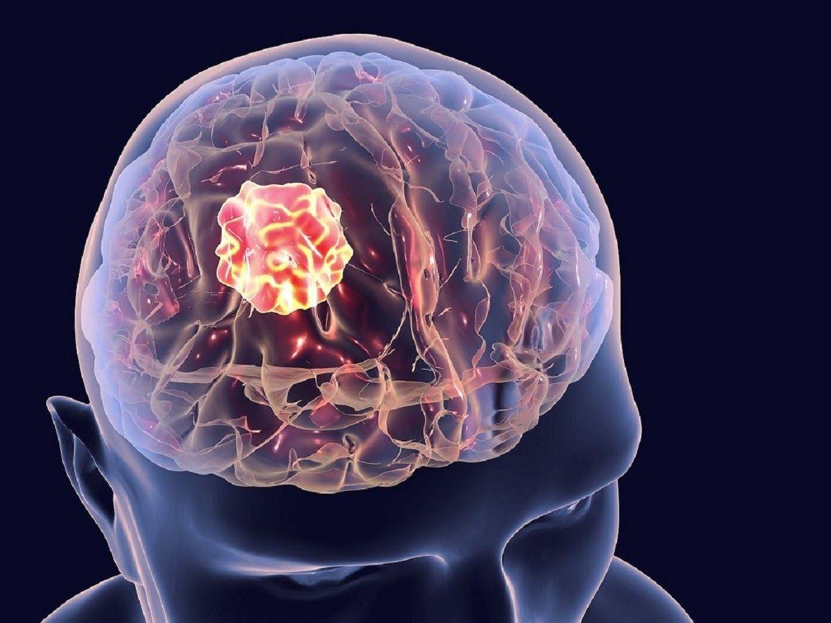 Ung thư não là bệnh lý ác tính xuất phát từ não