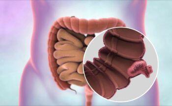 Những thông tin cần biết về ung thư ruột