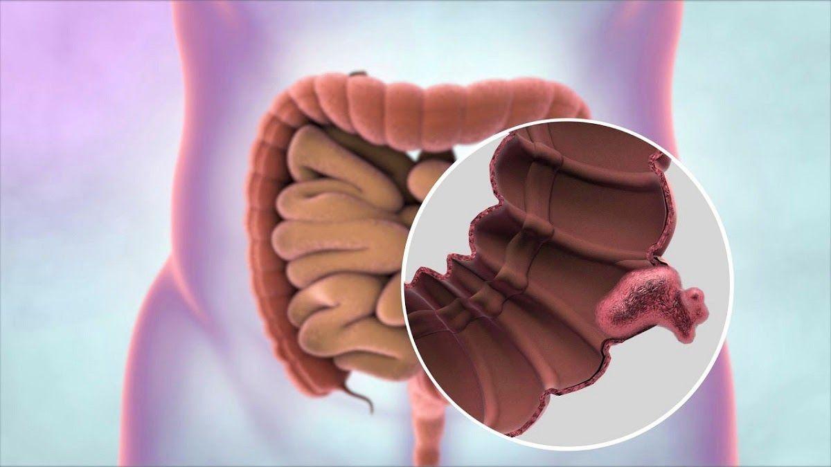 Ung thư ruột là việc gia tăng không kiểm soát của tế bào trong đường ruột