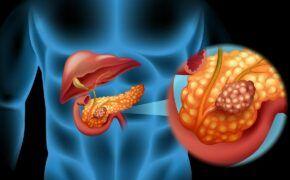 Dấu hiệu nhận biết ung thư tuyến tụy và cách điều trị