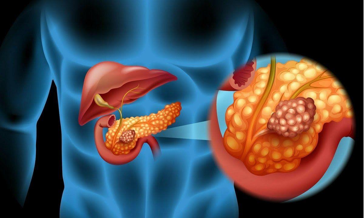 Ung thư tuyến tụy có tỷ lệ tử vong cao thứ 5 trong các bệnh ung thư
