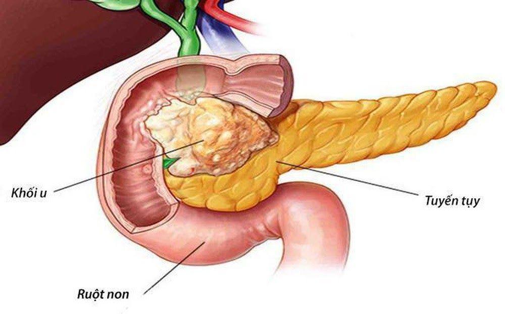 Ung thư tuyến tụy thường có tỷ lệ tỷ vong cao