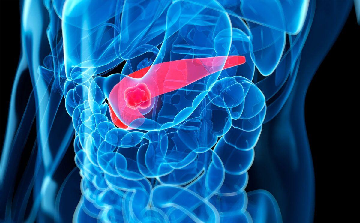 Người cao tuổi có nguy cơ mắc bệnh ung thư ở tuyến tụy rất cao