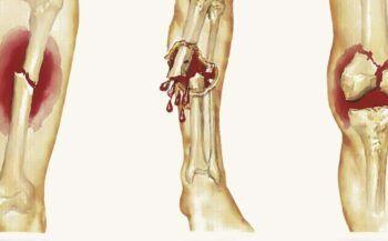 Giải đáp bệnh ung thư xương sống được bao lâu?