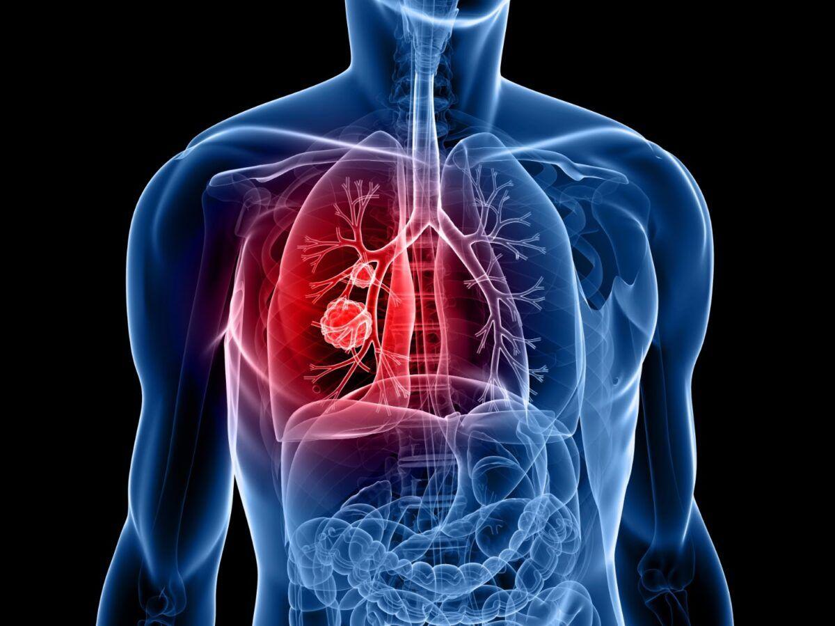 Ung thư phổi là loại bệnh ung thư nguy hiểm nhất với số người tử vong đứng đầu trong tất cả các loại bệnh ung thư