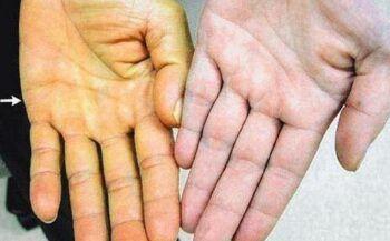 9 dấu hiệu nhận biết ung thư gan giai đoạn đầu