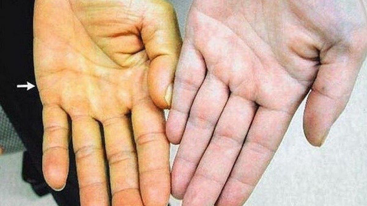 Vàng da là triệu chứng biểu hiện dễ nhận biết của ung thư gan