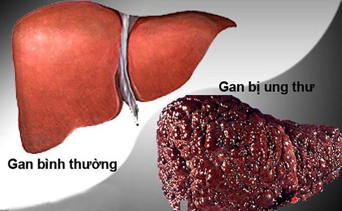 Hình ảnh một lá gan bình thường và một lá gan khi bị ung thư