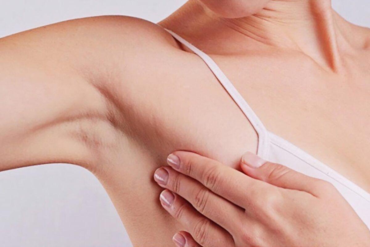 Xuất hiện khối u ở vú là triệu chứng bệnh ung thư vú