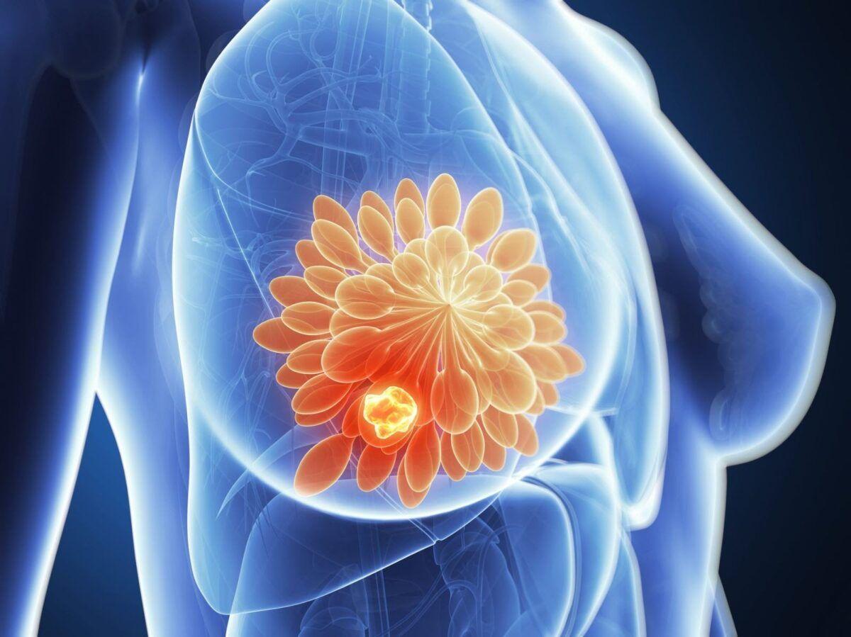 Ở giai đoạn muộn, người bệnh có thể nhìn thấy hoặc cảm thấy các khối u ở vú hay nách hoặc ở một nơi khác gần đó
