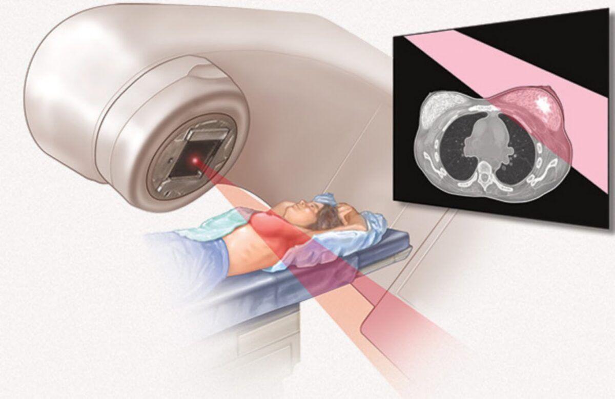 Ở giai đoạn 3 người bệnh có thể kết hợp xạ trị với các phương pháp khác