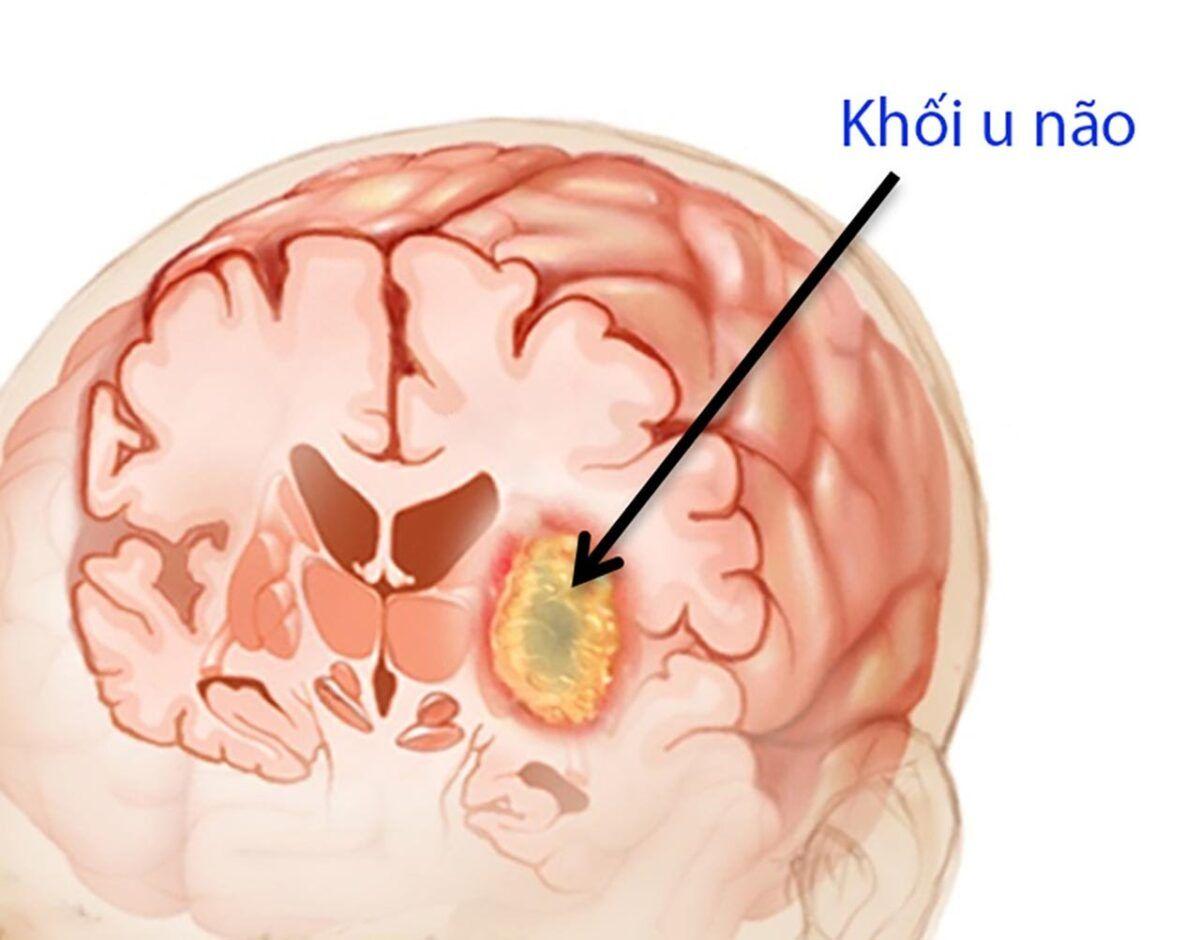 Người bệnh ung thư não thường gặp phải những cơn đau đầu xuất hiện thường xuyên vào buổi sáng
