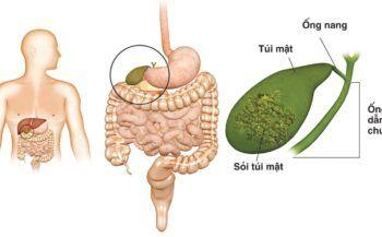 Các phương pháp chẩn đoán ung thư đường mật phổ biến hiện nay