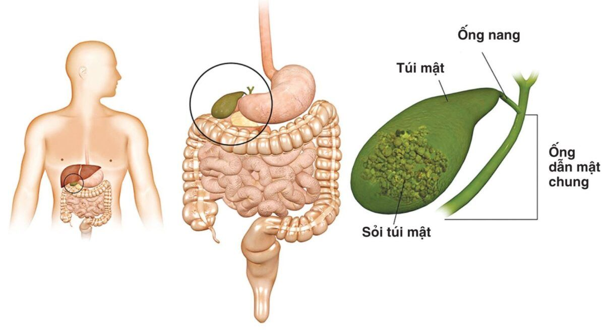 Ung thư đường mật khi đến giai đoạn cuối thì các cơn đau sẽ càng rõ rệt và khó chịu hơn