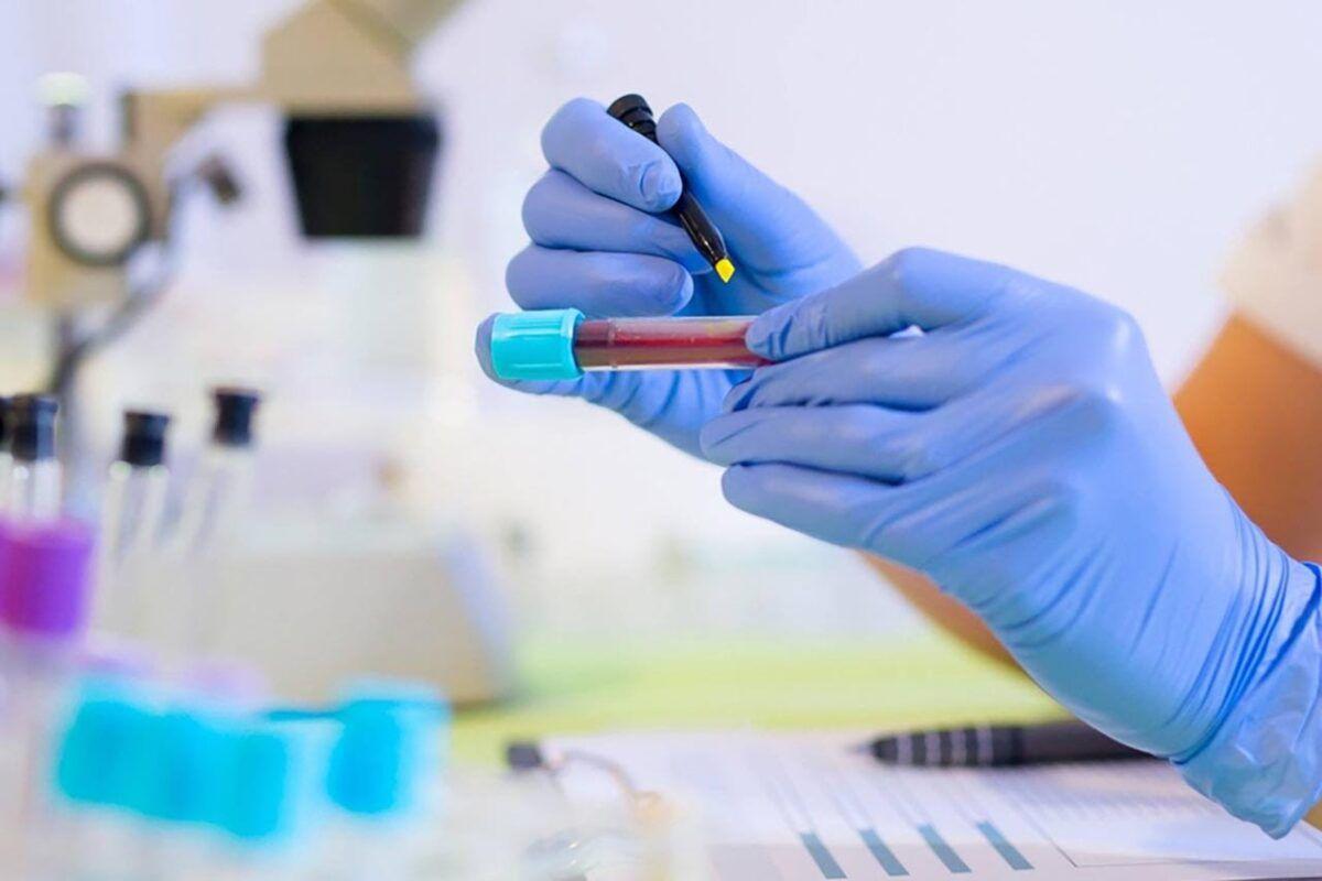 Chẩn đoán bệnh ung thư đường mật bằng phương pháp xét nghiệm máu là rất hiệu quả