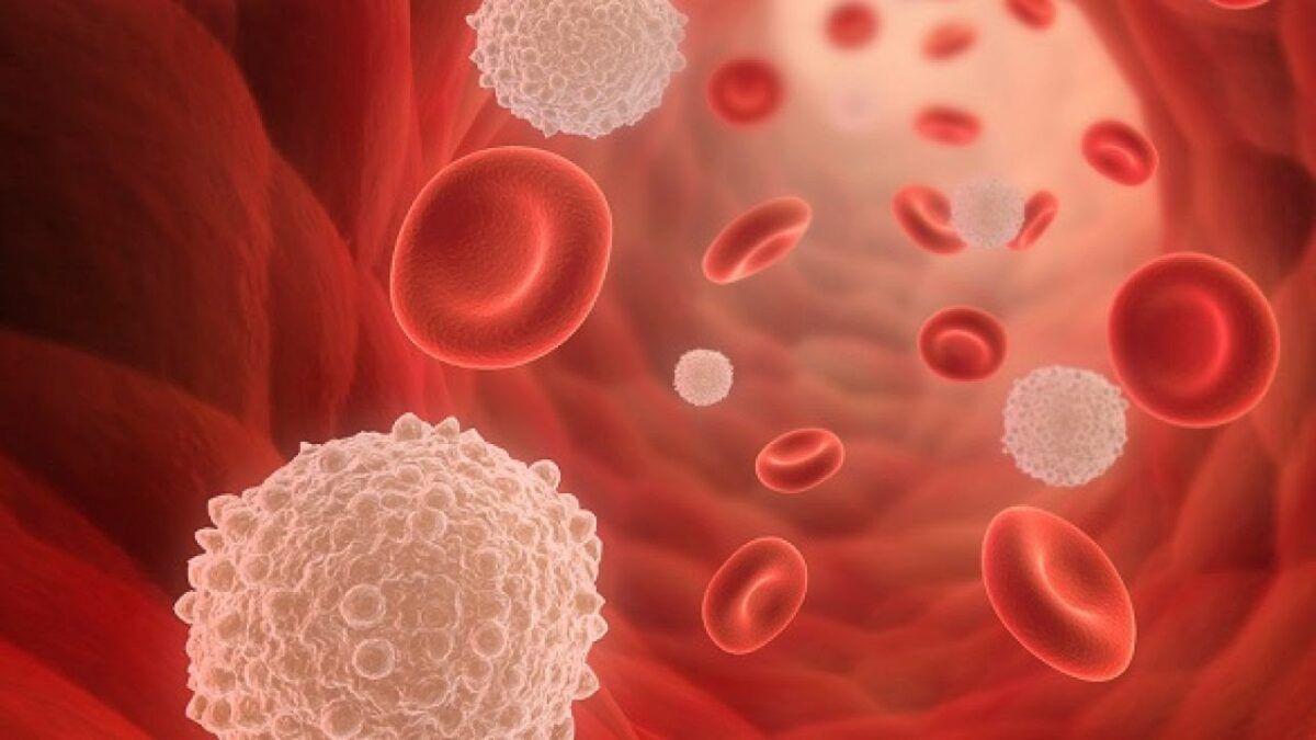 Sự tăng trưởng mất kiểm soát của các tế bào bạch cầu bất thường là nguyên nhân dẫn tới bệnh bạch cầu
