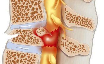 Ung thư tủy: nguyên nhân, triệu chứng và cách điều trị