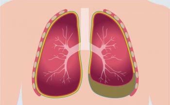 Những hiểm họa từ căn bệnh ung thư màng phổi
