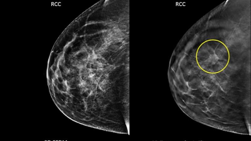 tìm hiểu dấu hiệu bệnh ung thư vú