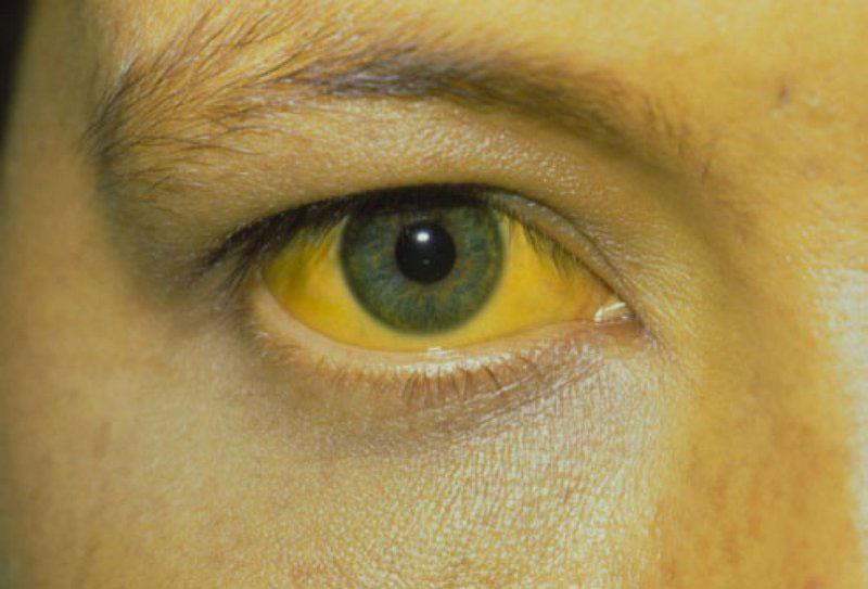 Triệu chứng vàng da, vàng mắt do nồng độ bilirubin cao trong máu