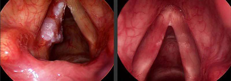 Hình ảnh so sánh thanh quản đã mắc bệnh và thanh quản bình thường