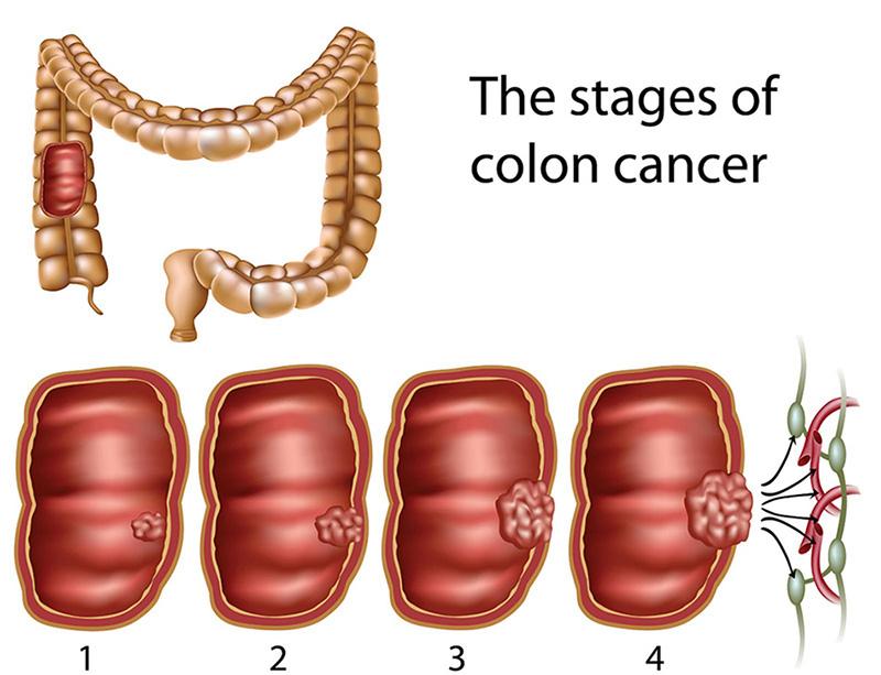 Hình ảnh minh họa sự phát triển của khối u qua các giai đoạn