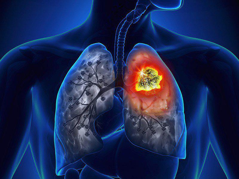 Ung thư phổi là bệnh ung thư thường gặp thứ 2 ở nam giới