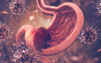 Dấu hiệu nhận biết ung thư một số bệnh điển hình