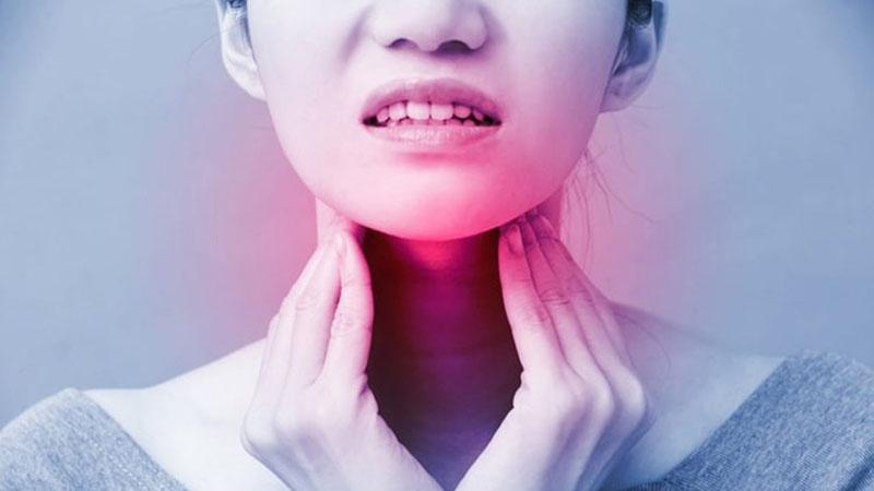 Đau rát họng là triệu chứng điển hình