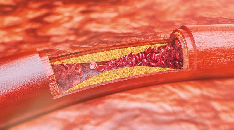 Bệnh máu nhiễm mỡ nặng có thể dẫn đến xơ vữa động mạch
