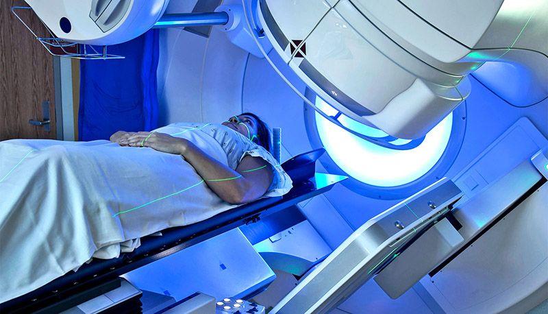 Tác dụng phụ của xạ trị gia tốc