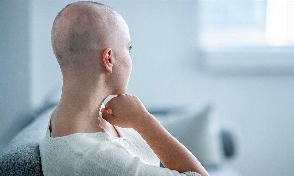Rụng tóc là dấu hiệu rõ ràng của bệnh nhân đang trong quá trình xạ trị