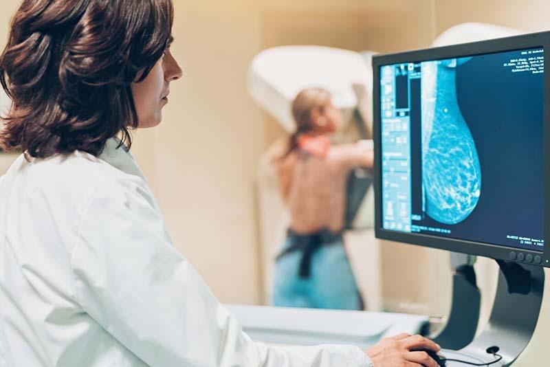 Chụp X-quang tuyến vú có nhiều ưu điểm vượt trội