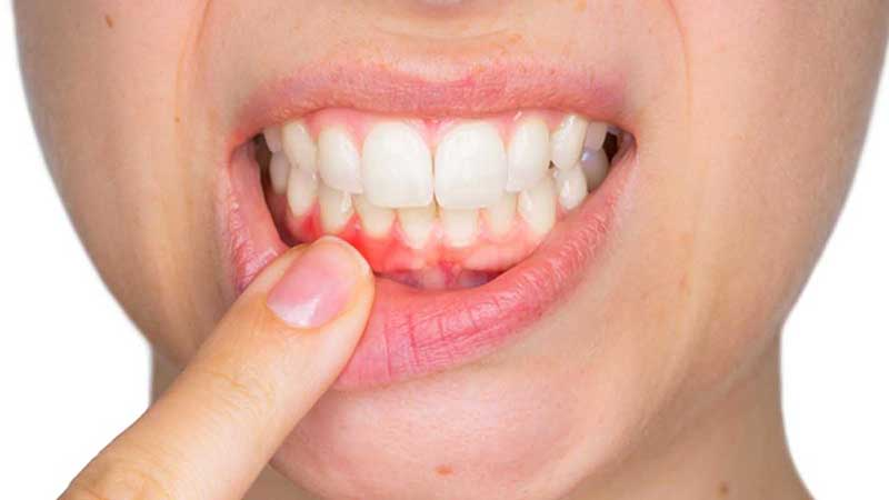Ung thư nướu răng
