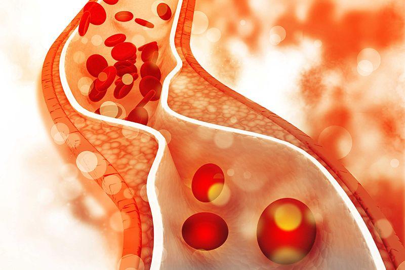 Thông thường, để xác định tình trạng mỡ máu, người ta dựa vào nồng độ cholesterol