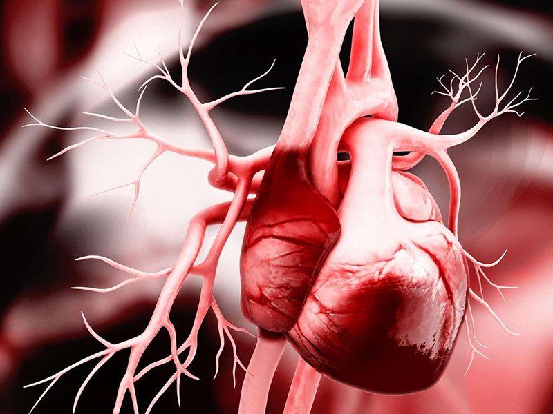 Suy tim là một trong những biến chứng nguy hiểm của bệnh rối loạn mỡ máu