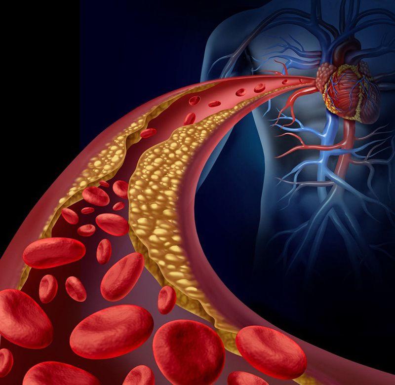 Mỡ máu cao làm tăng nguy cơ đột quỵ