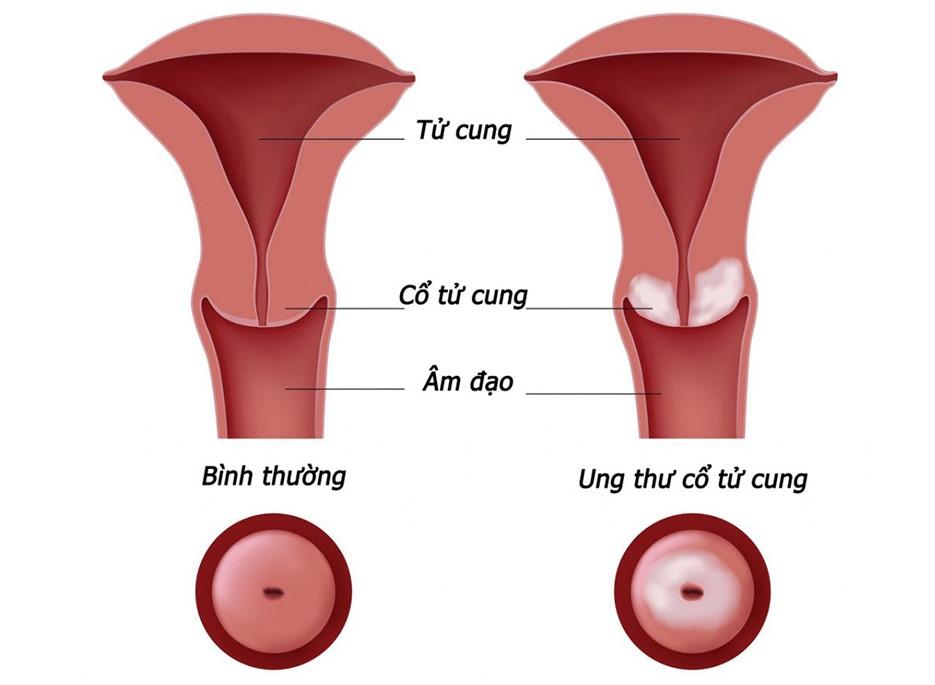 Tử cung thường và tử cung bị ung thư