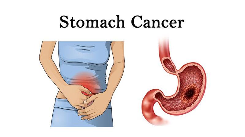 Bệnh ung thư dạ dày có 5 giai đoạn