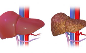 Bệnh ung thư gan: Tổng hợp nguyên nhân và các dấu hiệu